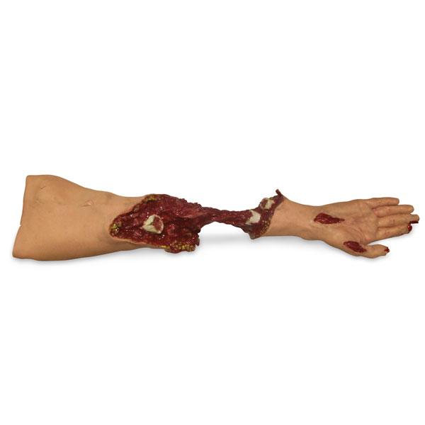 Xtreme Trauma Moulage Arm